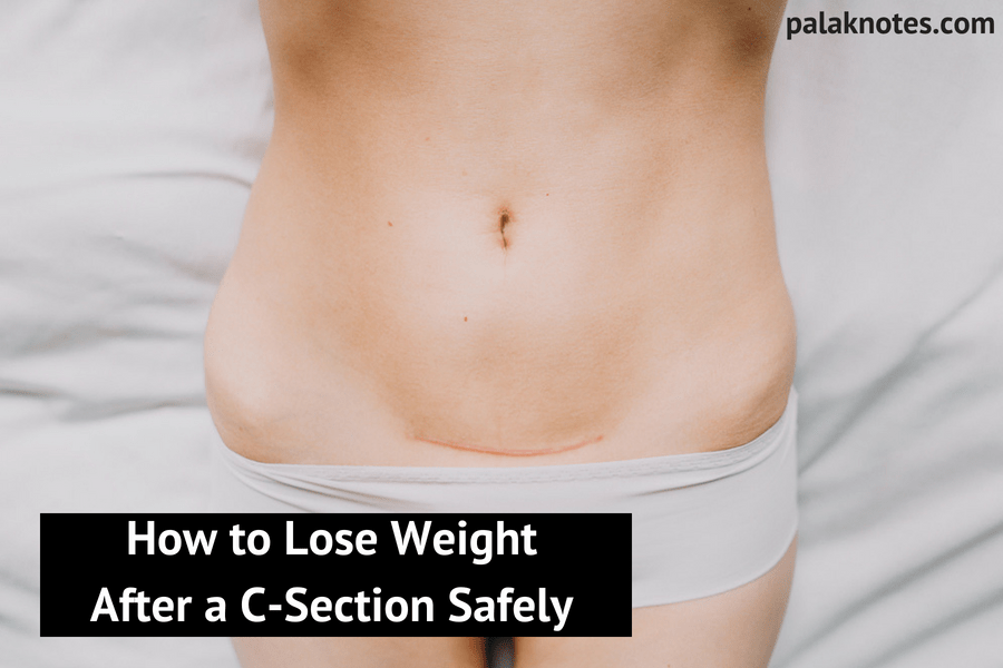 How to Lose Weight After a C-Section Safely (Completely Natural)