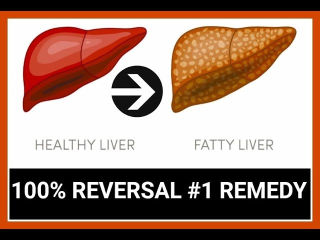 Fatty Liver Symptoms and Diet (Regenerate your Liver Naturally)