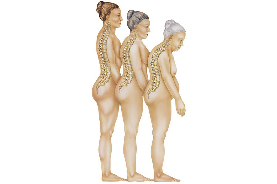 3 Natural Ways To Prevent Osteoporosis And Increase Bone Density